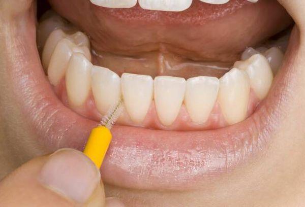 Зубной ершик